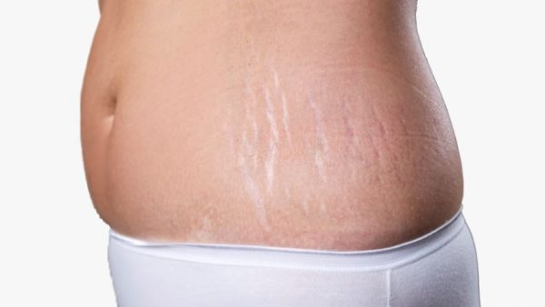 How To Vanish Stretch Marks Using The Law Of Attraction