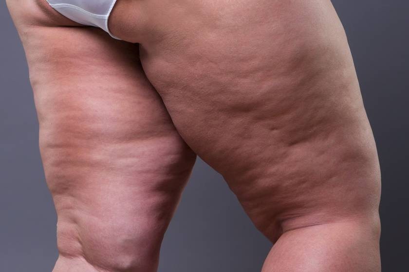 How To Get Rid Of Cellulite Using The Law Of Attraction